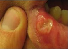 Canker Sores in Mouth