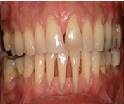 Treatment for Teceding Gums