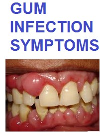 Gum Infection Symptoms