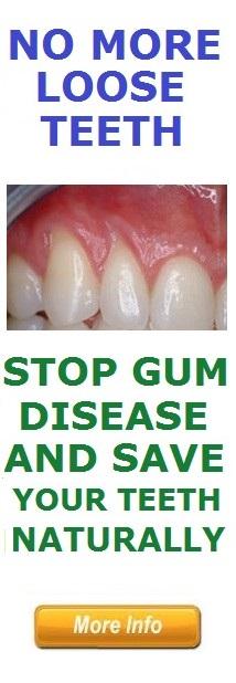 Loose Teeth in Adults